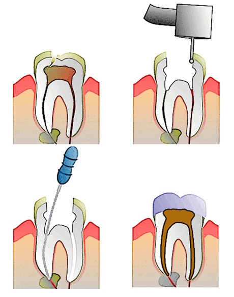 Endodontic Therapy (Root Canal Therapy) - Doctor Manolea